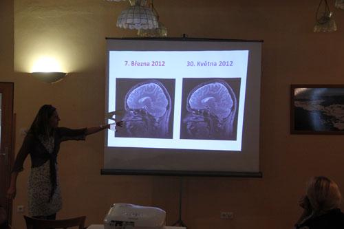 MRI před expedicí a po expedici – rozdíl žádný!