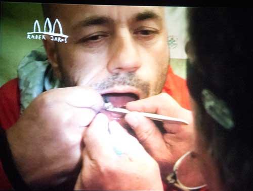 Operace zubů na Manaslu