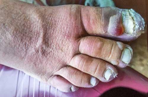 Kořenovo noha před zkrácením palců